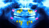 Diş panoramik röntgen — Stok fotoğraf