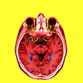 Anterior and medial cerebral arteries — Stock Photo