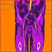 Abdominal aorta — Stock Photo