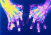Arthritis arthropathy — Zdjęcie stockowe