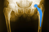 Man's hip radiograph — Stock Photo