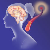 Depiction of an ischemic stroke — Stock Photo