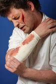 Man after injury — Stock Photo