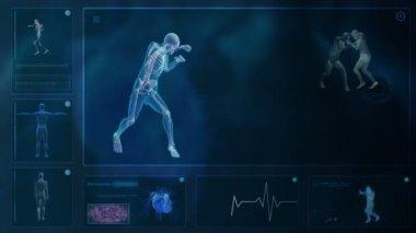 Computer X-raying the human body — Stock Video