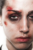 Beaten up girl close-up — Stock Photo