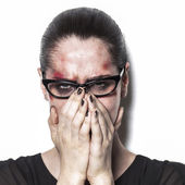 Beaten up girl crying and covering mouth with hands — Stock Photo