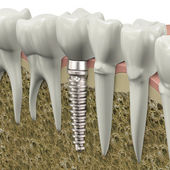 Dental implant — 图库照片