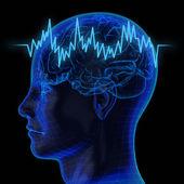 The human brain — Stock Photo