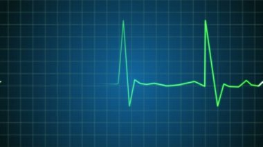 An Electrocardiogram (EKG or ECG) showing pulsating hearth beat — Stock Video