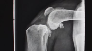 Veterinarian explaining radiograph to a pet owner — Stok video