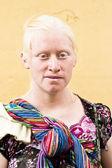 Albino woman — Stock Photo