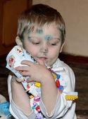 Boy is sick with chickenpox — Stock Photo