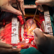 Постер, плакат: Coronary artery bypass grafting open left anterior descending artery
