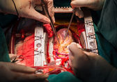 Coronary artery bypass grafting open left anterior descending artery — Stock Photo