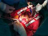 Coronary re implantation in ascending aortic aneurysm — Stock Photo