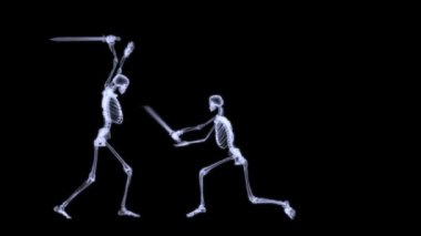 X-Ray radiography of human body (skeleton) — Stock Video