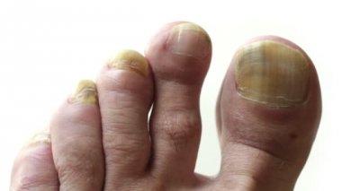 Fungi Toes — Stock Video