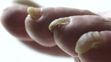 Fungal Nail — Stock Video