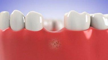 процесс установки зубного имплантата. hd — Стоковое видео