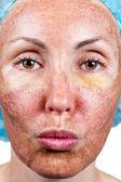 Kosmetika. chemický peeling. pergamen kůže před odmítnutí