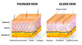 Bőr öregedését