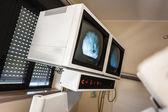 Lithotriptor idegen rádióadást figyel