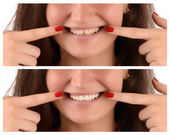 Before yellow teeth with gap and after white teeth and no gap.
