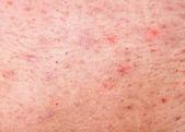 Menschliche Haut mit Akne