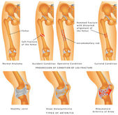 Fractures of Femur Hemmed fracture with distorted alignment of the femur Fixation of Femur Fracture with Placement of Intramedullary Rod Types of Arthritis - Osteoarthritis Rheumatoid Arthritis