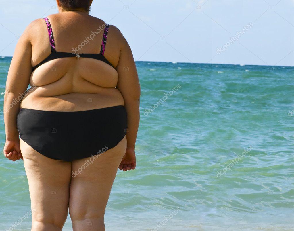 Obesity women
