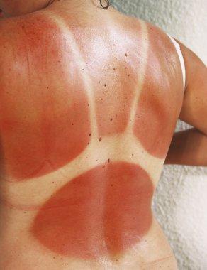 solar burn