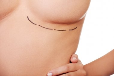 Woman breast marked out for cosmetic surgery
