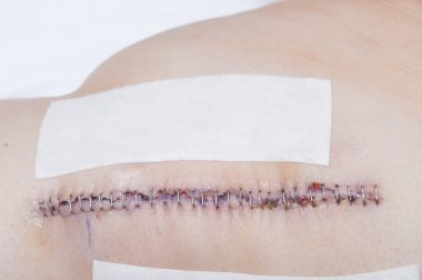 Knee Replacement Staples