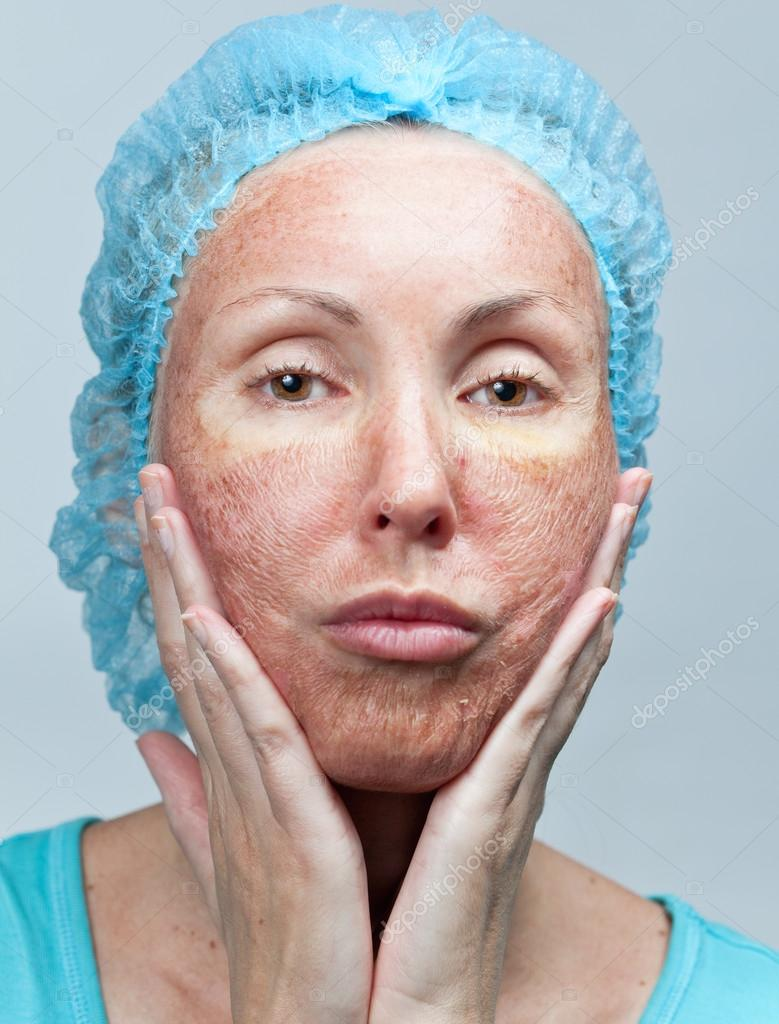cosmetology chemical peeling parchment skin before rejection