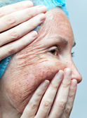Cosmetologia. peeling chimico. pelle pergamena prima rifiuto