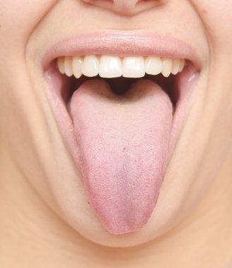 healthy tongue