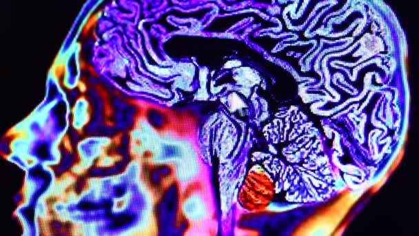 MRI scan on computer moniter