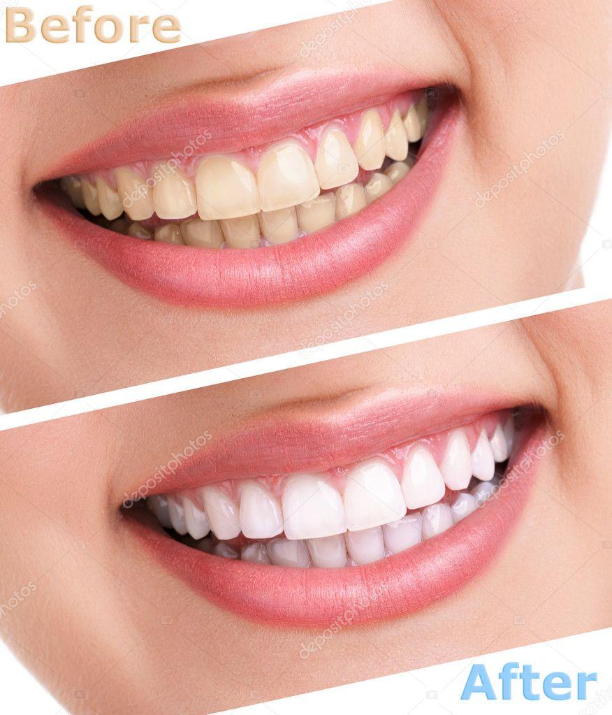 Tratamento Clareador De Dentes Stock Photo C Luckybusiness 14351537