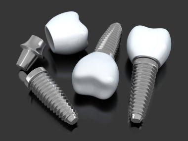Three Dental implant