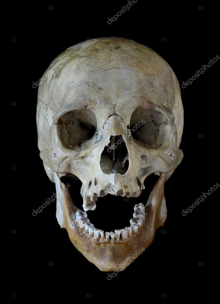 cráneo humano — Foto de stock © ivantcovlad #38701333