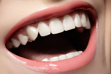 Macro happy woman's smile with healthy white teeth, tender pink gloss lips make-up. Stomatology and beauty care