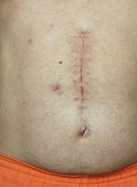 Scar from surgery