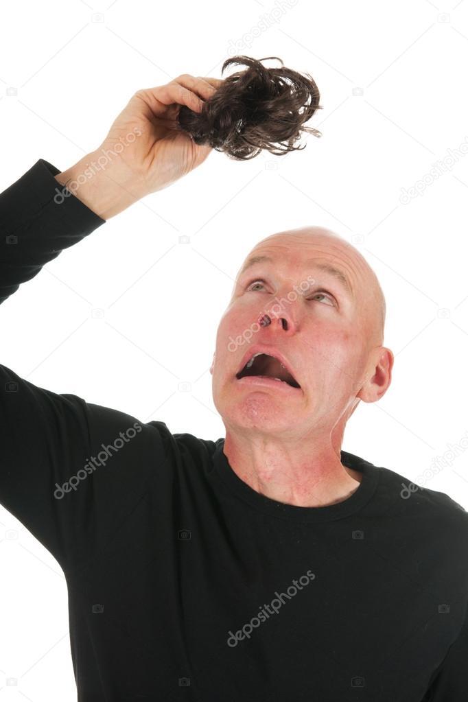 Neue haare bei glatze