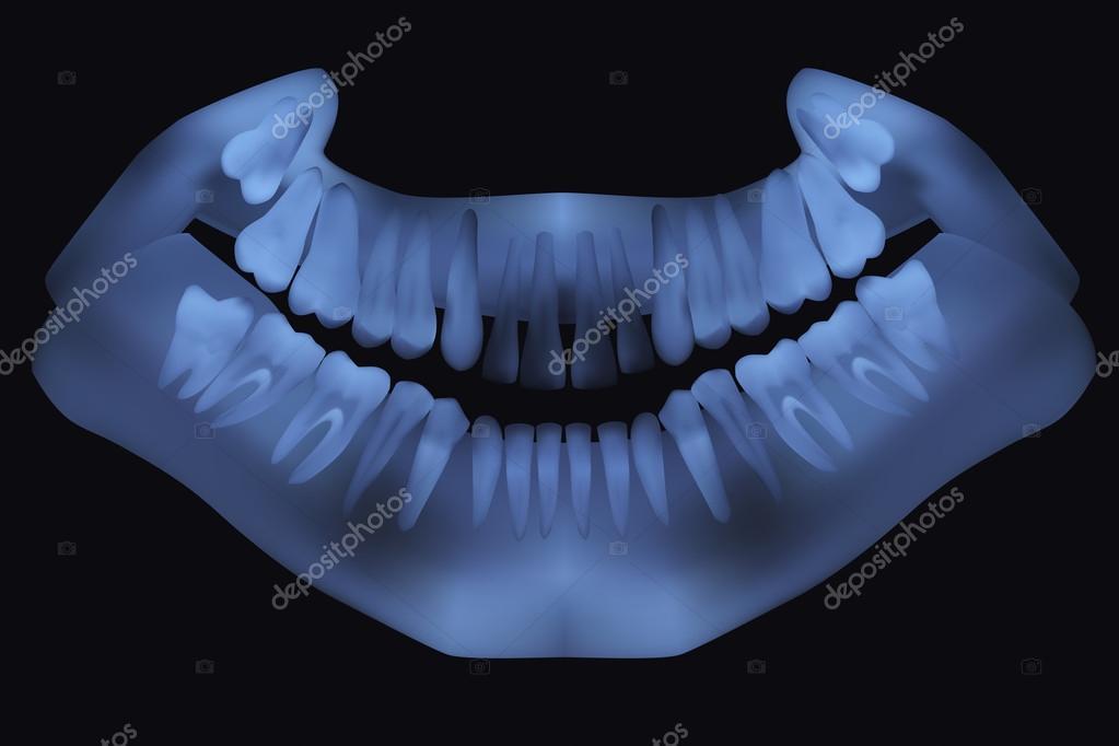 radiografía panorámica dental. ilustración vectorial — Vector de ...