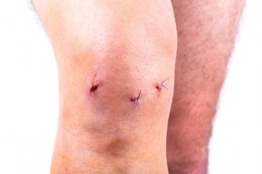 Man knee after arthroscopic surgery