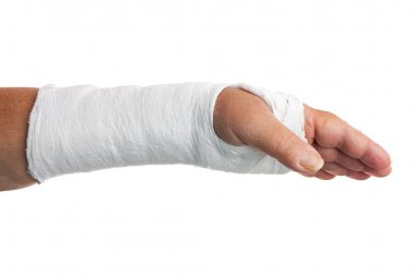 Broken arm with a plaster cast
