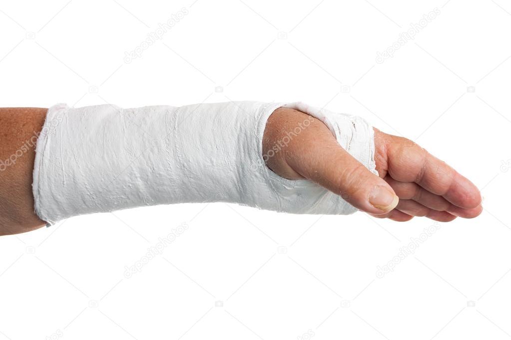 A broken arm wont stop me 1