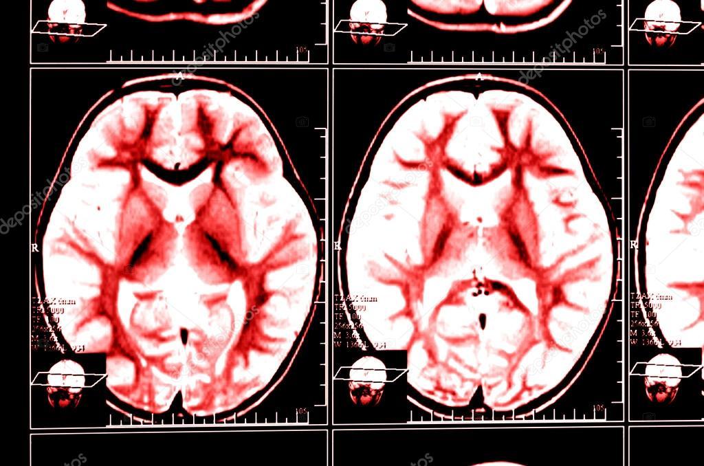 Röntgenbild des Gehirns Computertomographie — Stockfoto ...
