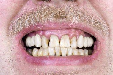 Yellow teeth studio shot