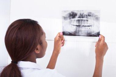 Dentist Looking At Jaw Xray